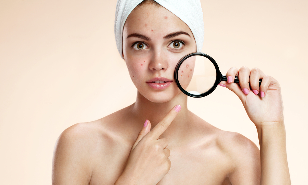 woman with acne prone skin