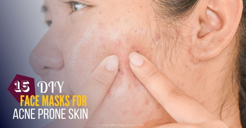 natural face masks for acne scars