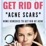 pinterest image for getting rid of acne scars