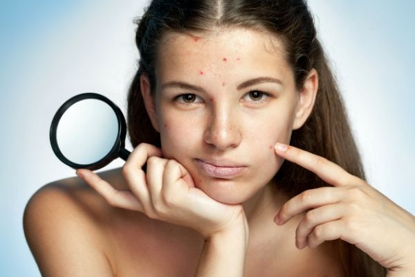 girl with pimples to explain causes of pimples on face in adults