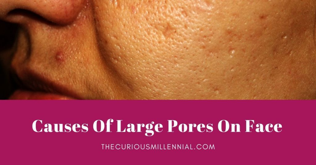 what causes large pores on face