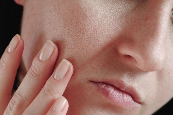 open pores on oily skin