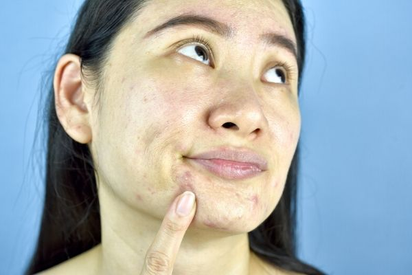 woman unhappy with dirty oily skin