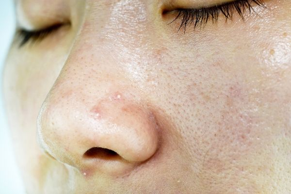 girl with oily skin that causes large pores