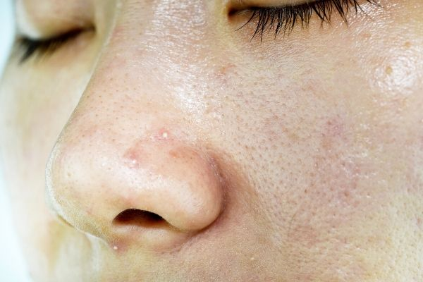 woman with oily skin type