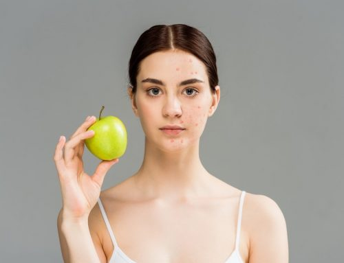 The Acne Diet: How To Eat Your Way To Clear Skin Fast