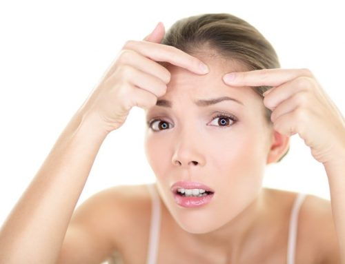 Acne Vs Pimples: Is There A Difference?