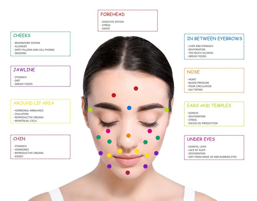 acne face chart