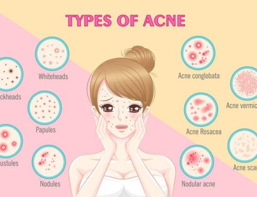 What Type Of Acne Do I Have? 6 Types of Acne Explained