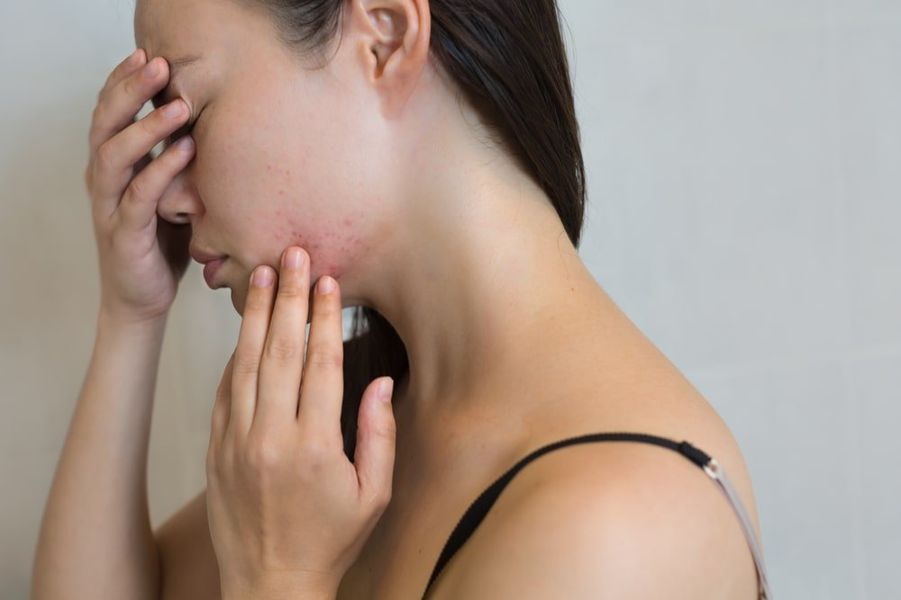 can acne pills cause depression