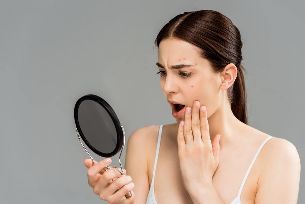 does retinol make acne worse before it gets better