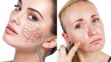 how to know if you have oily or dry skin