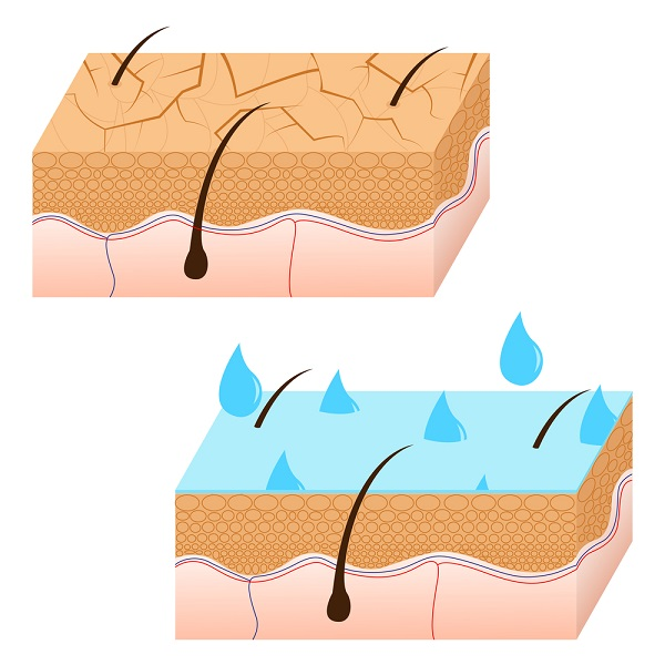 oily skin and dry skin illustration