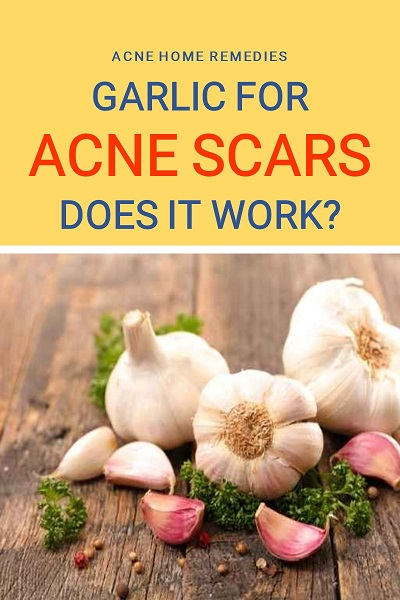 can garlic work for acne scars