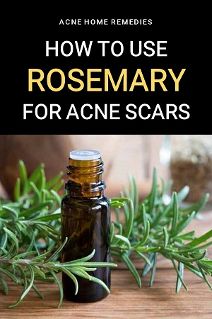 how to use rosemary for acne scars